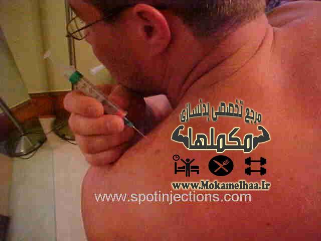 عکس آموزش تزریق استروئید در عضلات