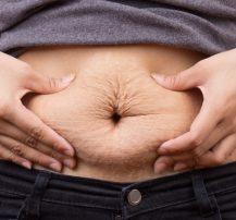 عکس چگونه از شر پوستهای اضافه بعد از کاهش وزن خلاص شویم