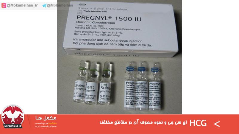 اچ سی جی (HCG) و نحوه مصرف آن در مقاطع مختلف