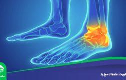 تقویت عضلات مچ پا