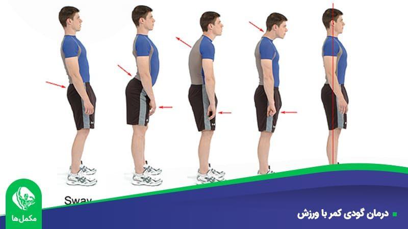 درمان گودی کمر با ورزش